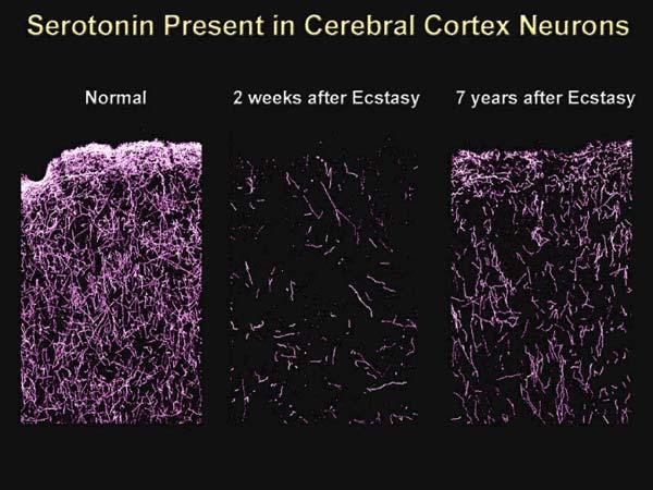 Долгосрочный эффект экстази на мозг обезьян
