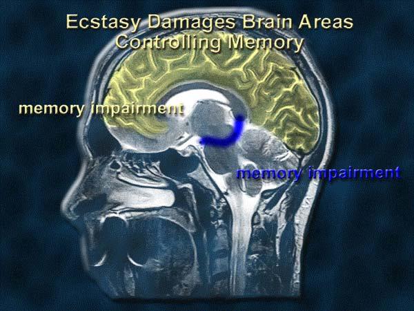 Постоянное употребление экстази ухудшает память